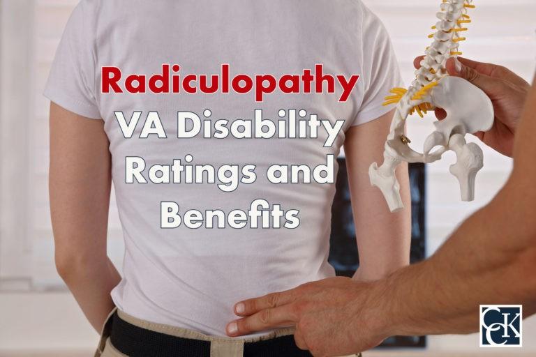 Radiculopathy VA Disability Ratings and Benefits