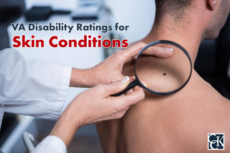 VA Disability Ratings for Skin Conditions