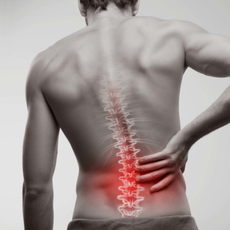 3 common back conditions veterans experience