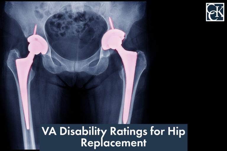 VA Disability Ratings for Hip Replacement