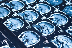 brain scan images checking for epilepsy