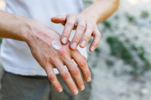 man applying white cream to rash covered hand affected by skin disorder