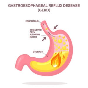 Illustration of how GERD occurs in the stomach