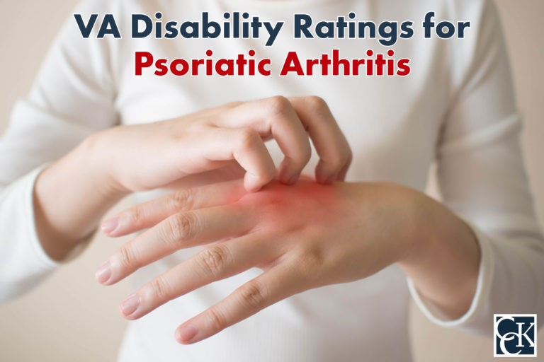 VA Disability Ratings and Benefits for Psoriatic Arthritis