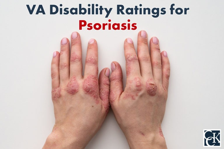 VA Disability Ratings for Psoriasis