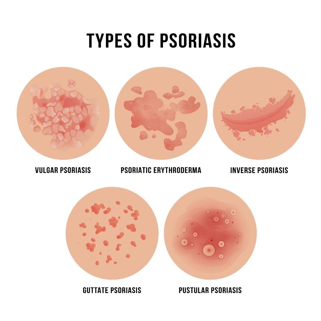 types of psoriasis: vulgar, psoriatic, inverse, guttate, pustular
