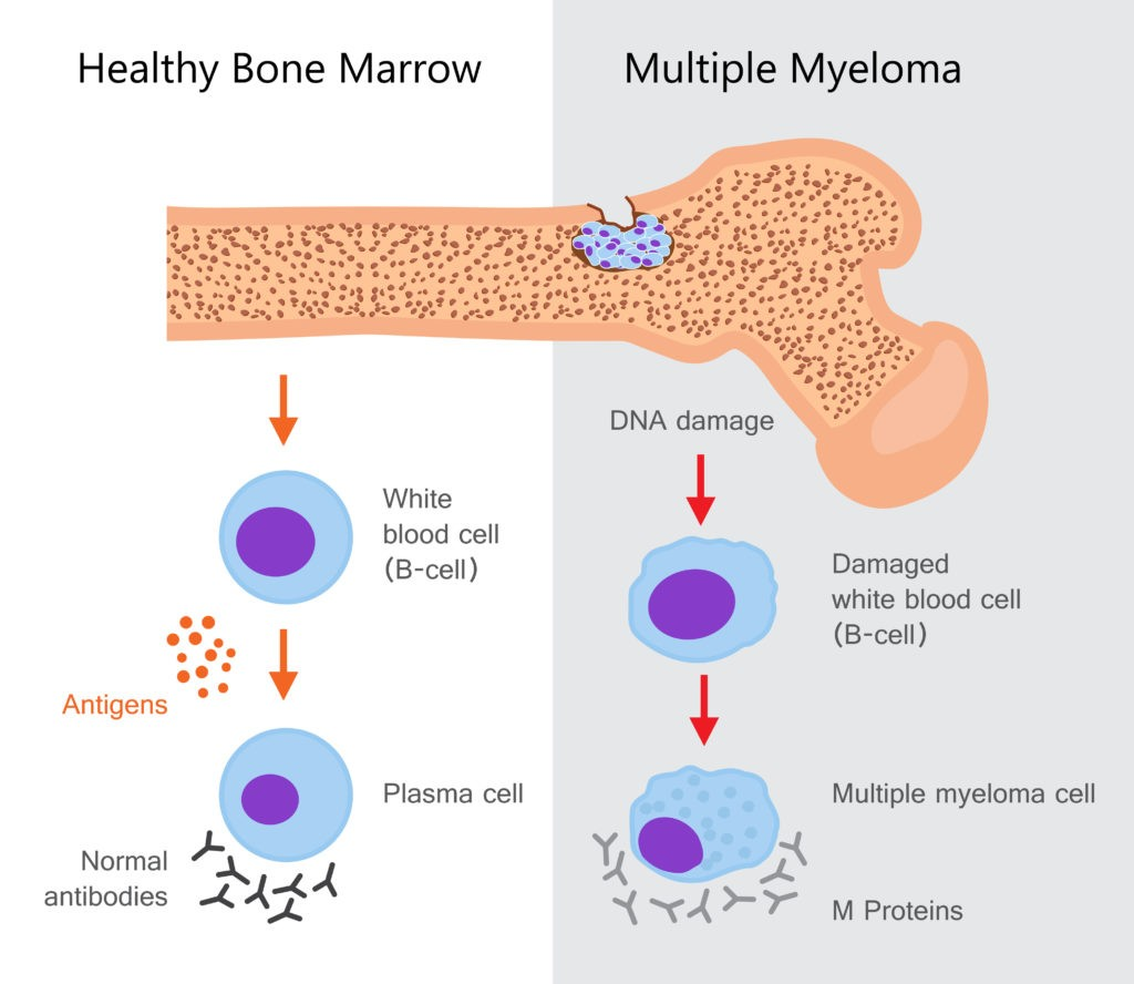 multiple myeloma diagram how it impacts body